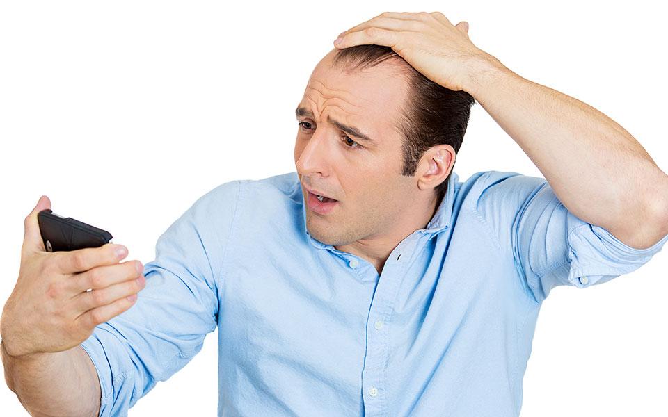 Causas de la Calvicie: 10 Mitos y Verdades