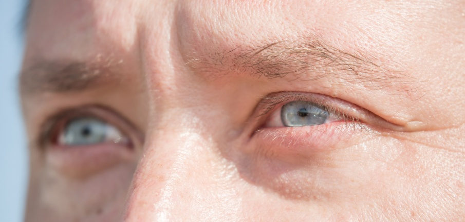 ¿Alopecia en las Cejas? ¡8 Tratamientos para Prevenirla!