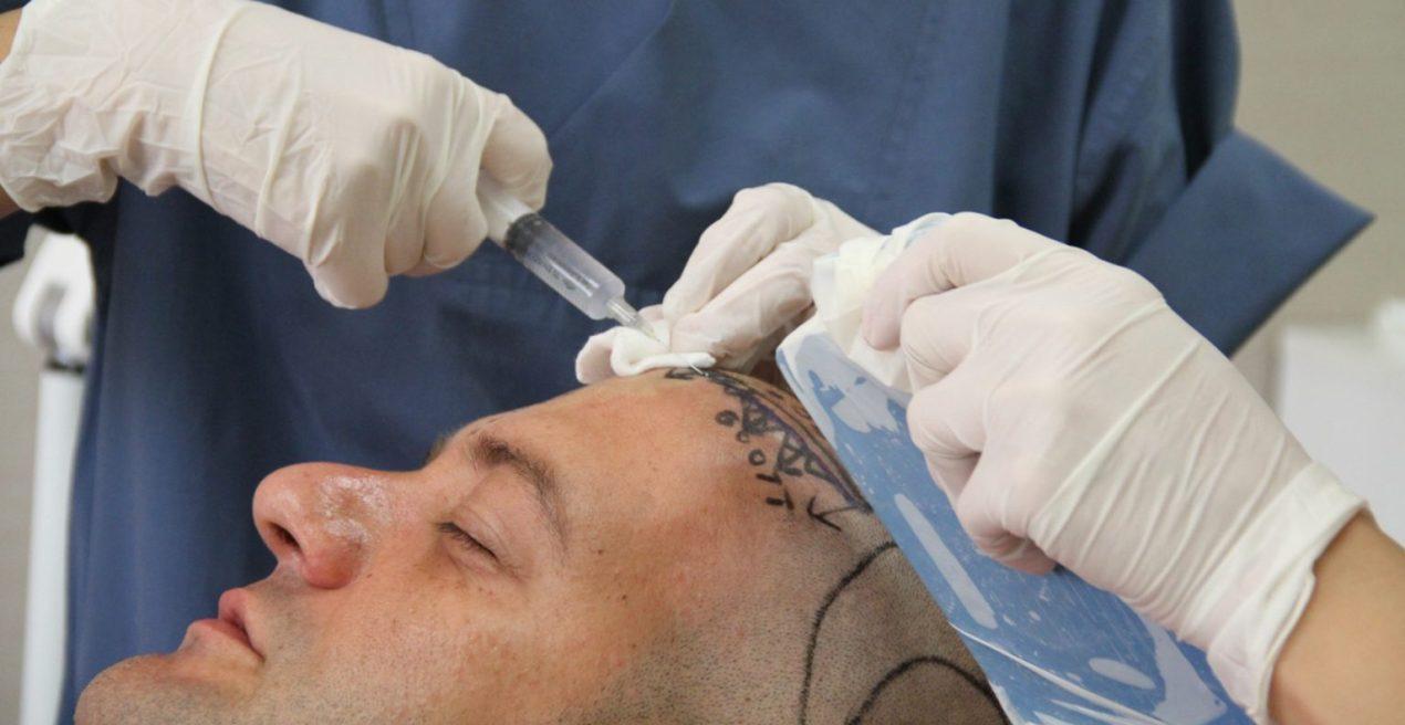 Trasplante Capilar sobre Cicatrices: ¿Realmente Funciona?