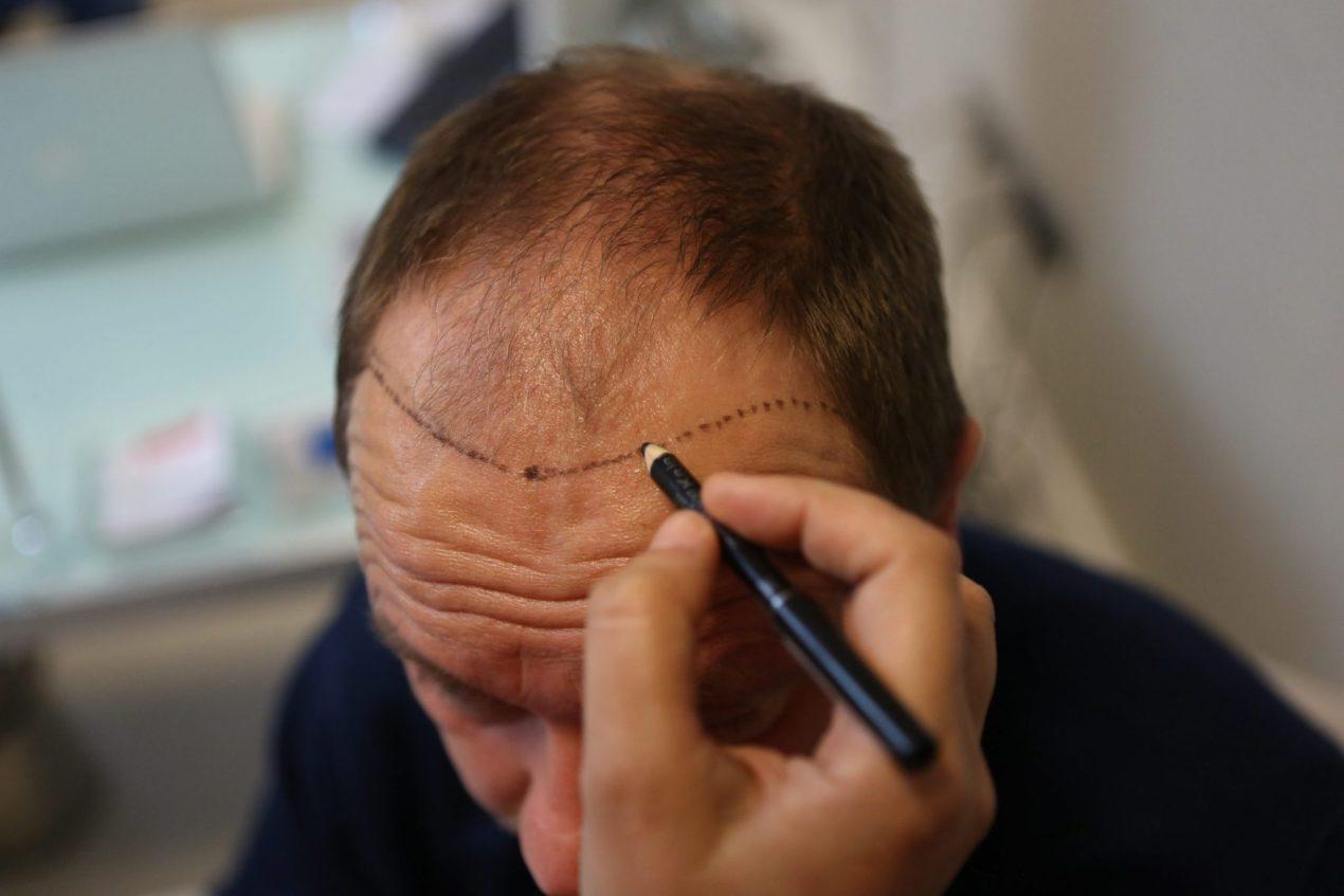 Naturalidad del Implante Capilar: ¿Cómo se Obtiene?
