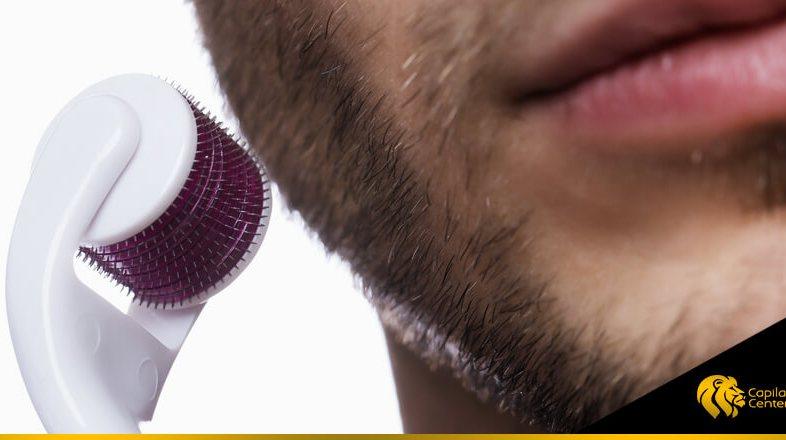 Dermaroller para la barba: ¿garantiza el crecimiento de los folículos?