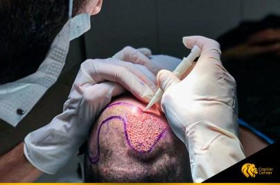 El mejor doctor de trasplante capilar en Lima