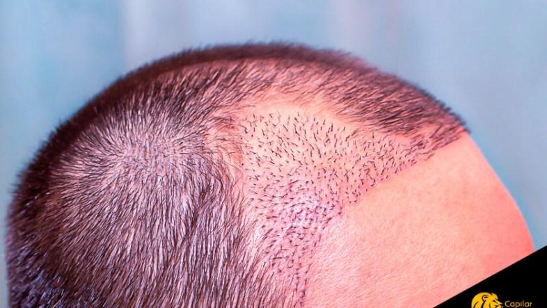 Implante Capilar: solución al gen de la calvicie