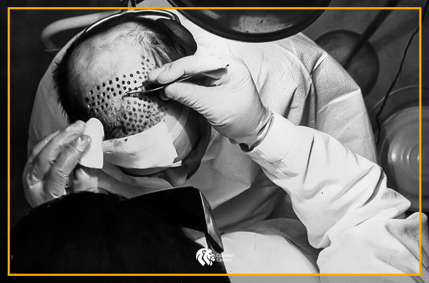 ¿Cómo se dio origen al implante de cabello?
