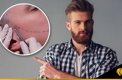 Tipos de barba: ¿cuál es el mejor diseño para mi implante?