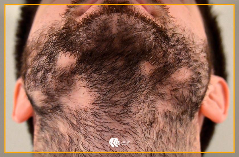 ¿El implante de barba hará crecer mi barba?