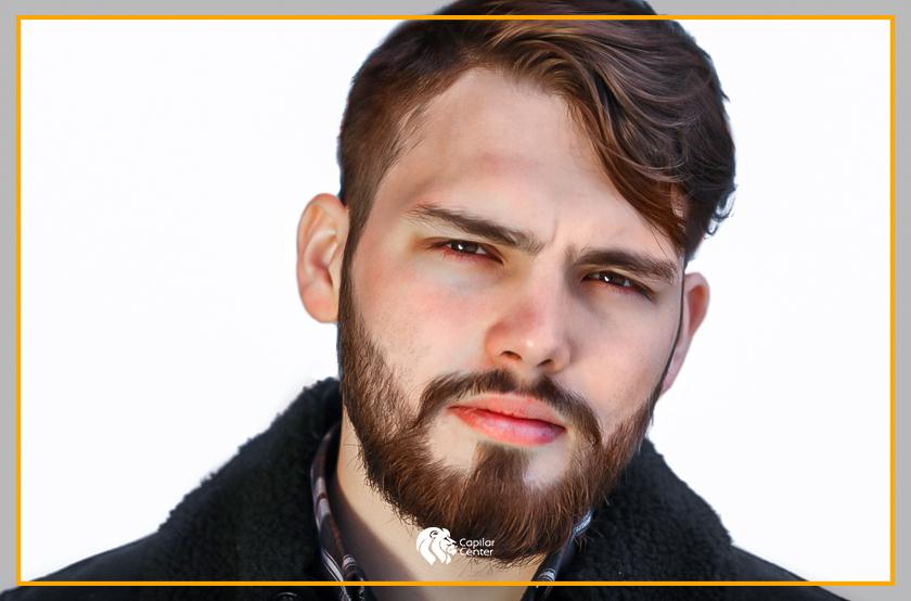 Con el implante, ¿puedo elegir el diseño de mi barba?