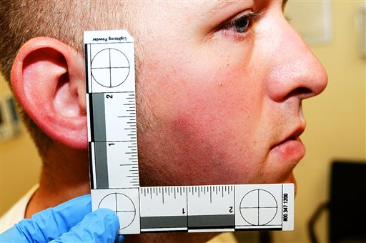 Ferguson police officer Darren Wilson during his medical examination after he fatally shot Michael Brown, in Ferguson, Mo.