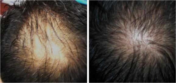 Carboxiterapia para alopecia