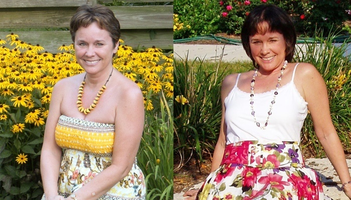 Rebecca Latham Before & After