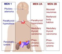 Multiple Endocrine Neoplasia (MEN) Seminar Scheduled at Mayo Clinic