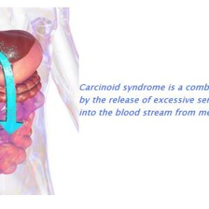 Carcinoid Syndrome, Lexicon Pharmaceuticals, Telotristat Etiprate Clinical Trial
