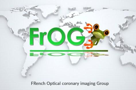 lefrogglobal2