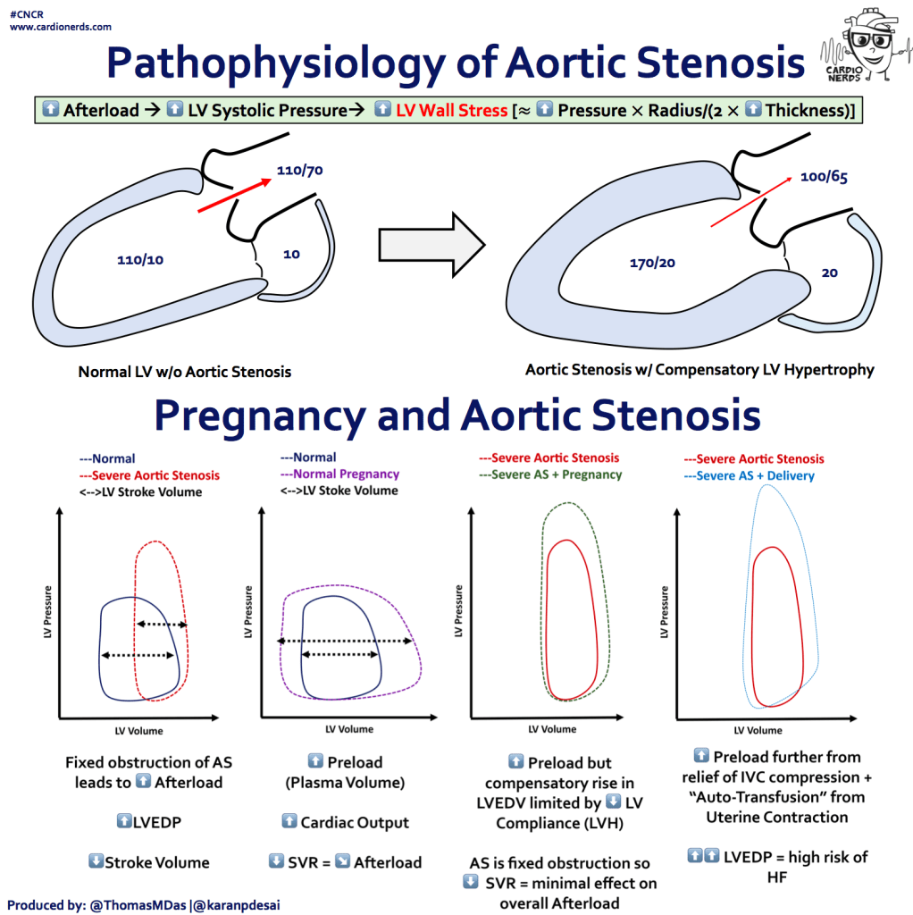 "#CNCR  www.cardionerds.com  Pathophysiology of Aortic Stenosis  CARDIO  NERDS  Afterload O LV Systolic Pressure*  O LVWall Stress  o  Pressure x Radius/(2X Thickness)]  110/10  110170  10  170120  100/65  20  Normal LV w/o Aortic Stenosis  Aortic Stenosis w/ Compensatory LV Hypertrophy  Pregnancy and Aortic Stenosis  —Normal  —Severe Aortic Stenosis  Stroke Volume  LV Volume  Fixed obstruction of AS  leads to Afterload  o  LVEDP  o  Stroke Volume  Produced by: @ThomasMDas l@karanpdesai  ""-Normal  ---NormaI Pregnancy  Stoke Volume  LV Volume  o  Preload  (Plasma Volume)  o  Cardiac OUtPUt  SVR = Afterload  ""-Severe Aortic Stenosis  —Severe AS + Pregnancy  LV Volume  o  Preload but  compensatory rise in  LVEDV limited by O LV  Compliance (LVH)  AS is fixed obstruction so  o  SVR = minimal effect on  overall Afterload  ---Severe Aortic Stenosis  ---Severe AS + Delivery  LV Volume  o  Preload further from  relief of IVC compression +  ""Auto-Transfusion"" from  Uterine Contraction  LVEDP = high risk of"