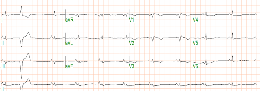 Arrhythmogenic right ventricular cardiomyopathy (ARVC)