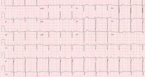 CardioNerds ECG Challenge #3
