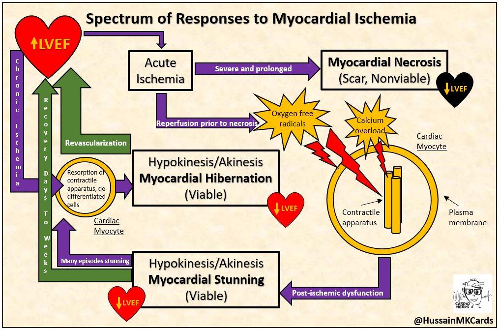 Spectrum of Responses to Myocardial Ischemia- CardioNerds