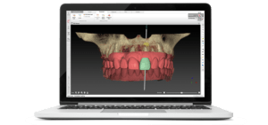 3d model of teeth on computer