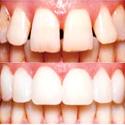 gapped teeth repaired with veneers
