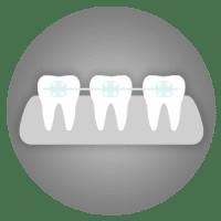 Teeth Straightening - cosmetic dentistry