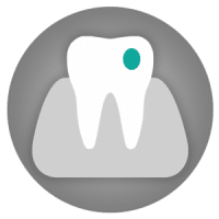 Composite bonding - tooth fillings