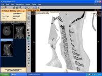 Tomografía cervical del cuello