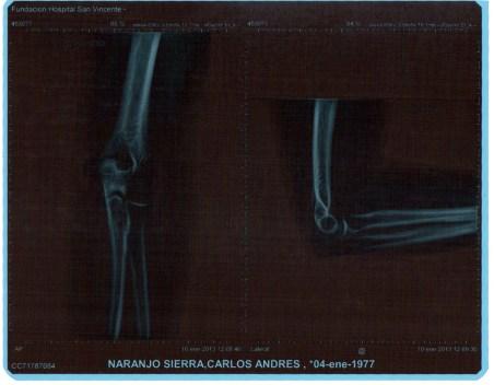 Radiografía del codo