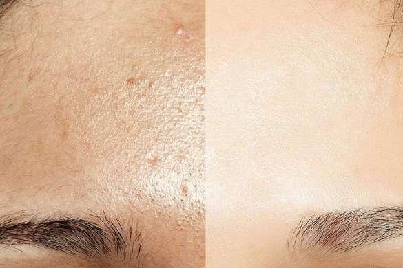 Rutina facial para pieles grasas