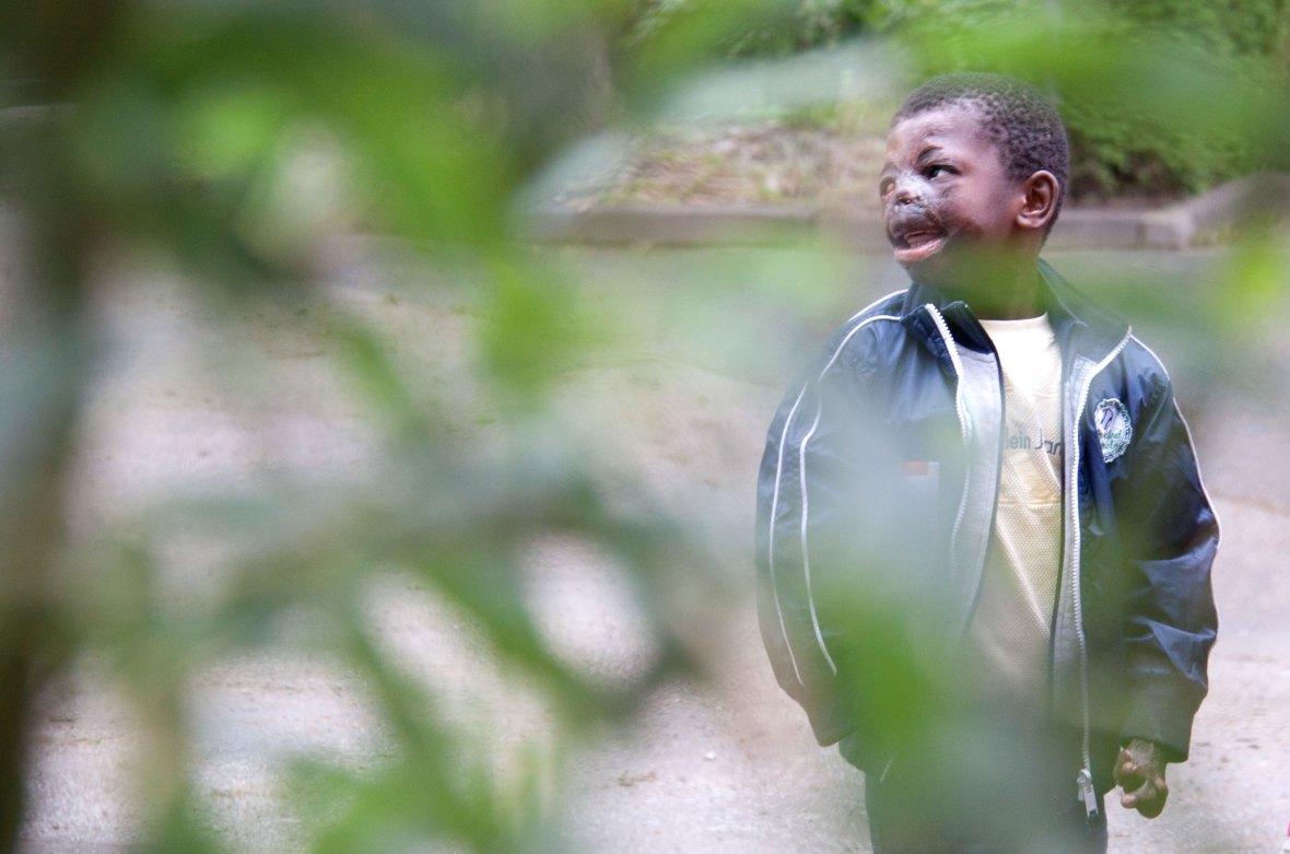 Kind mit Verbrennungen im Gesicht
