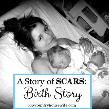 A Story of Scars: Birth Story