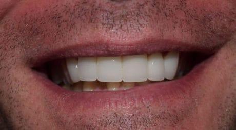 Dental before & after photos - Carrollton Dental Solutions