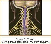 Figura 5 - Tumor