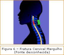Figura 6 - Fratura Cervical Mergulho