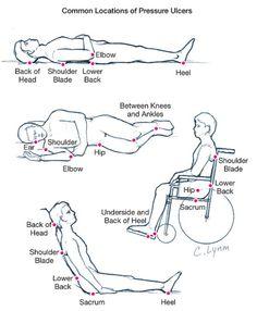 escaras ulcera de pressao (1)