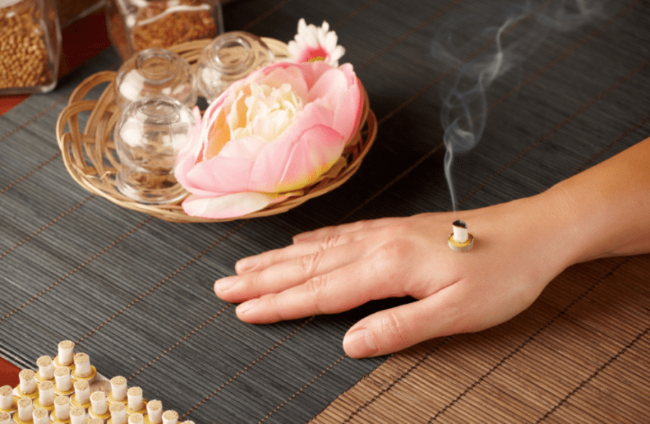 how to do moxibustion