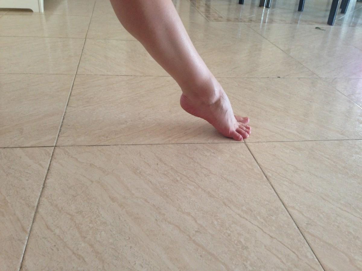 fractura del bailarín 2
