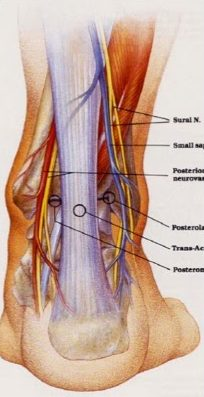 artroscopia de tobillo 2