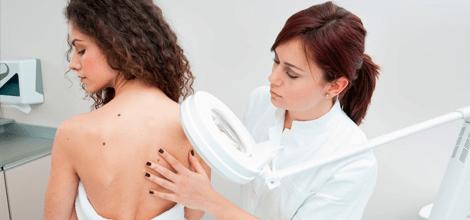 Com realitzar un examen de pell per a la detecció primerenca de càncer?