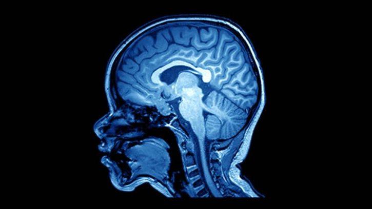 MRI Scan para explicar por qué las personas hacen cosas inusuales