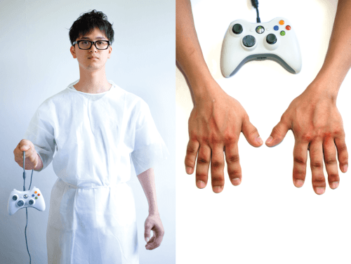 man dangles xbox remote and shows swollen infected fingers on gaming hands