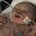 Premature Baby Given Hours to Live Miraculously Recovers, Look at Him Now