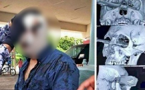 video homem continua brigando por vaga em estacionamento com faca cravada na cabeca assista