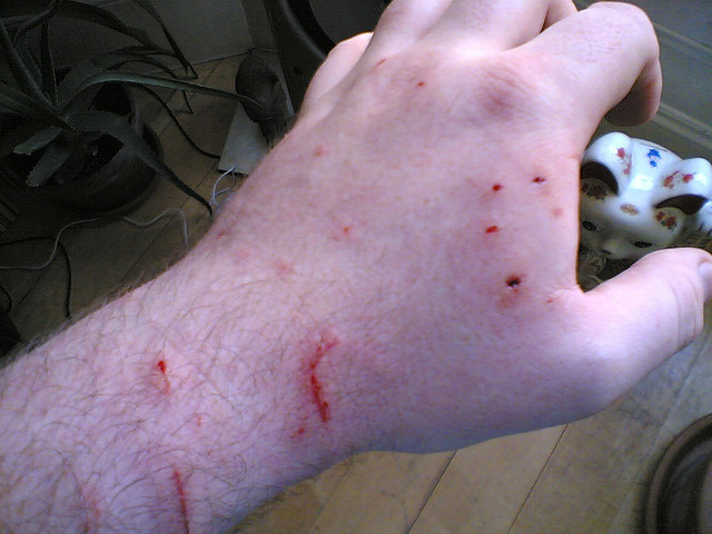 Cat bites on a hand.