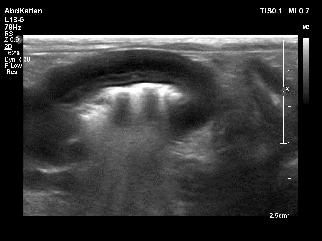 Alimentair lymfoma (lymfoma van de dunne darm) verlies van de darmlagen