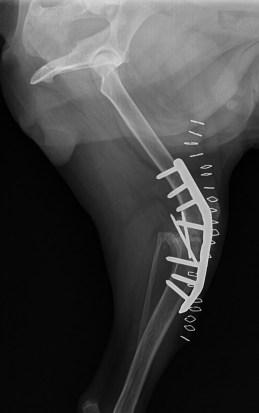 het resultaat na de tweede operatie