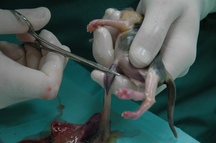 operatie lymfeklieren buik
