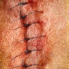 De huid wordt gesloten met afzonderlijke hechtingen.