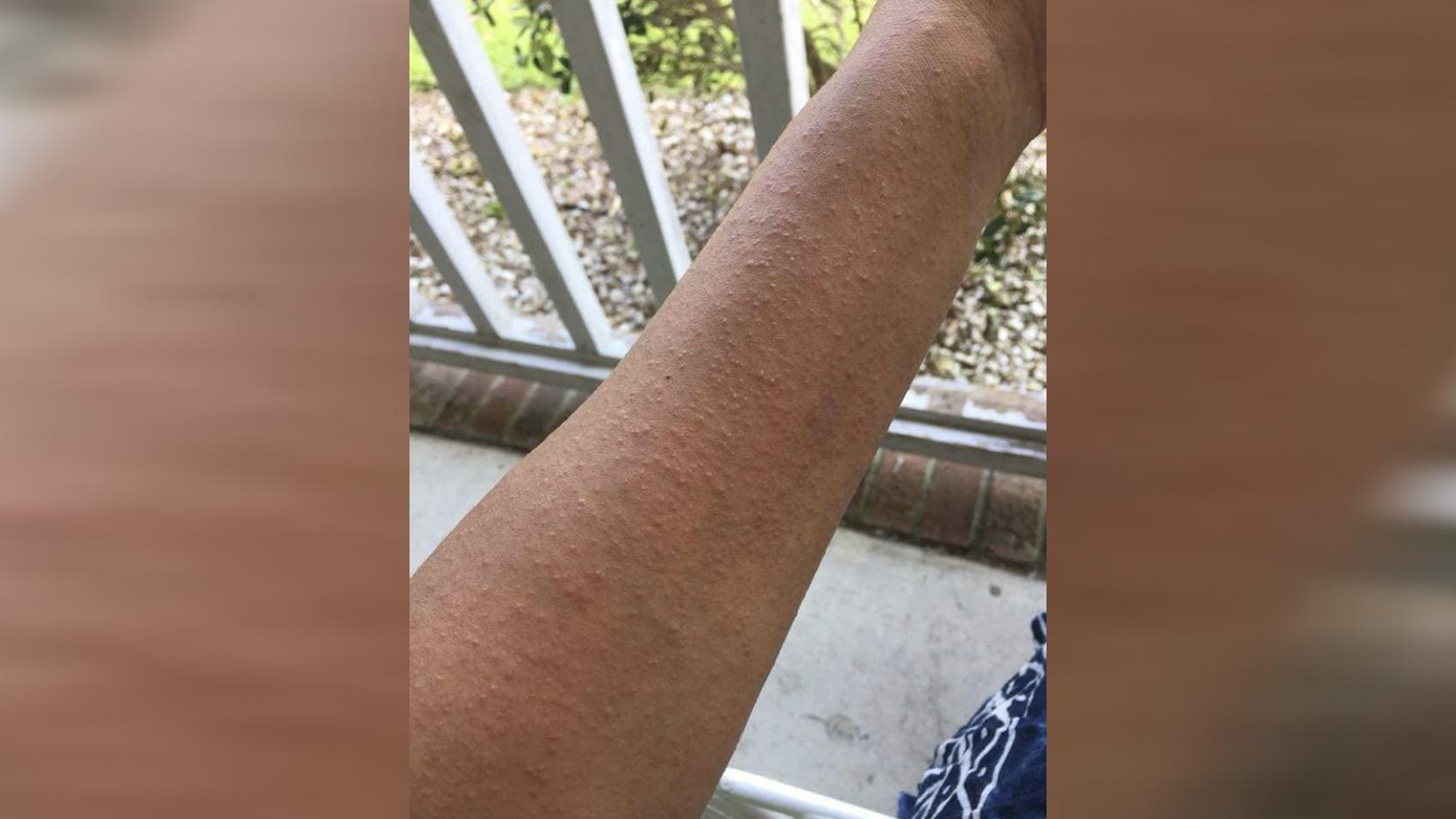Cumberland measles_1530136076480.jpg.jpg