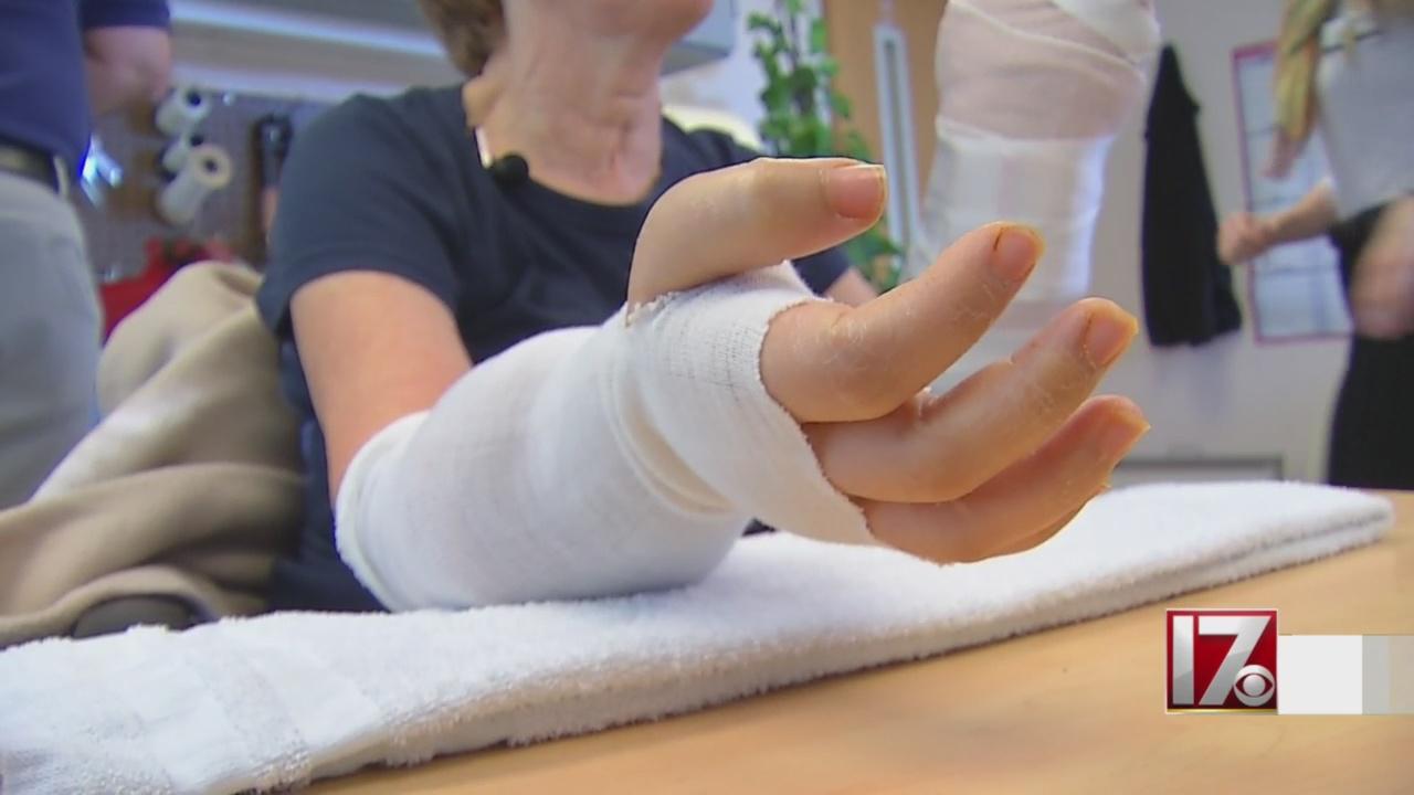 maggie hand transplant 3