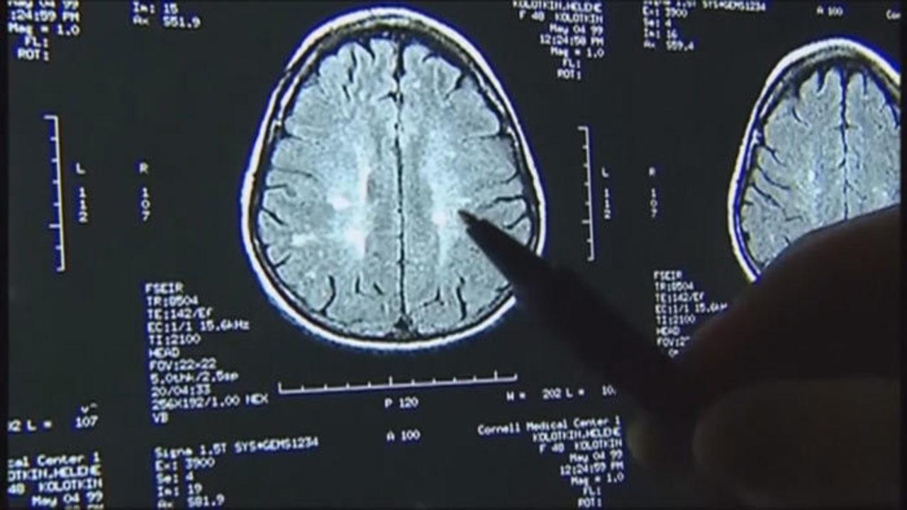 brain scan courtesy cbs17.com https www.google.com search q football concussion brain scams_1556209793518.jpg.jpg